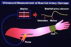 血管内皮機能検査