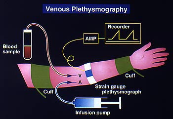 Heart Human Anatomy Video also Fig7 moreover Labeled Heart Model Anatomy Denoyer Geppert Heart Human Anatomy Web Site in addition Army Men Rts additionally Blut62. on blood flow